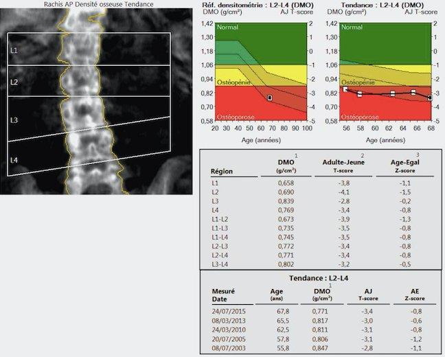 Ostéodensitométrie 2