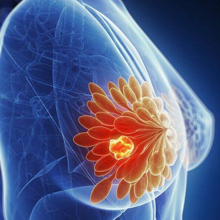 Cancer du sein - Mammographie