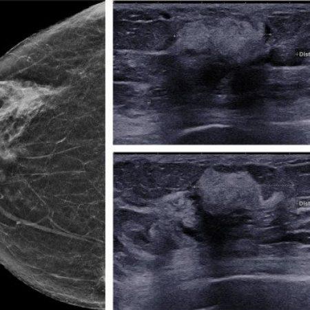 Mammographie et échographie mammaire (1)